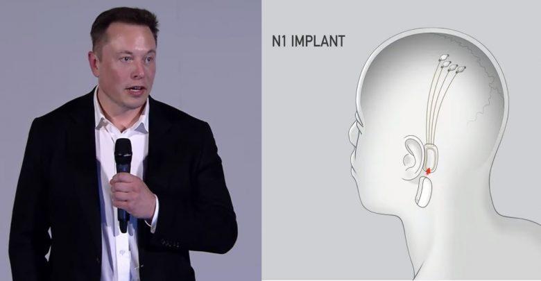 descubre neurolink